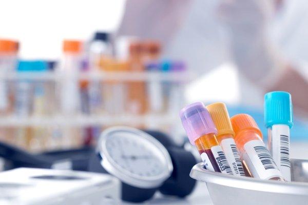 Лабораторные методы диагностики варикоза