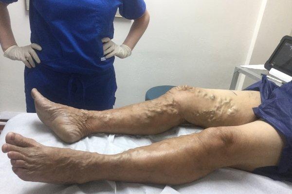 Запущенный варикоз на ногах