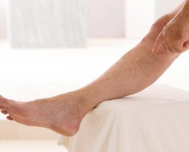 Капиллярный варикоз на ногах