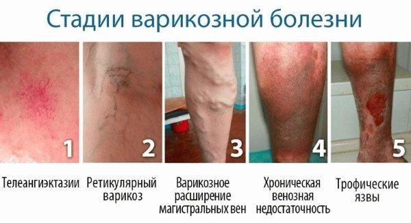 Стадии развития варикозной болезни