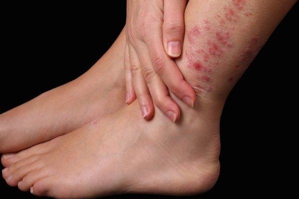 Симптомы варикозной экземы нижних конечностей