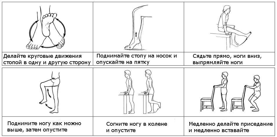 Упражнения при варикозе для ног