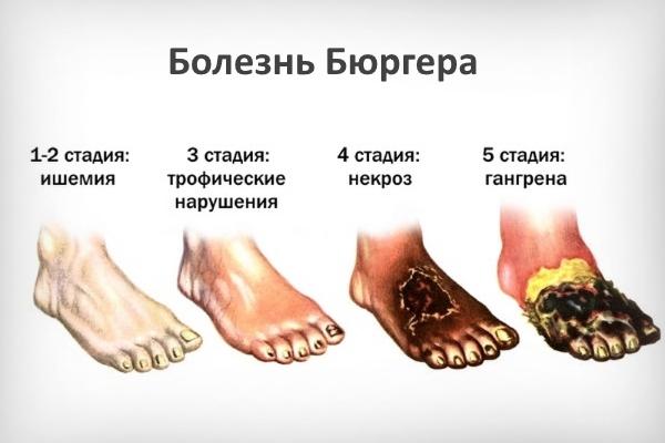 Стадии болезни Бюргера